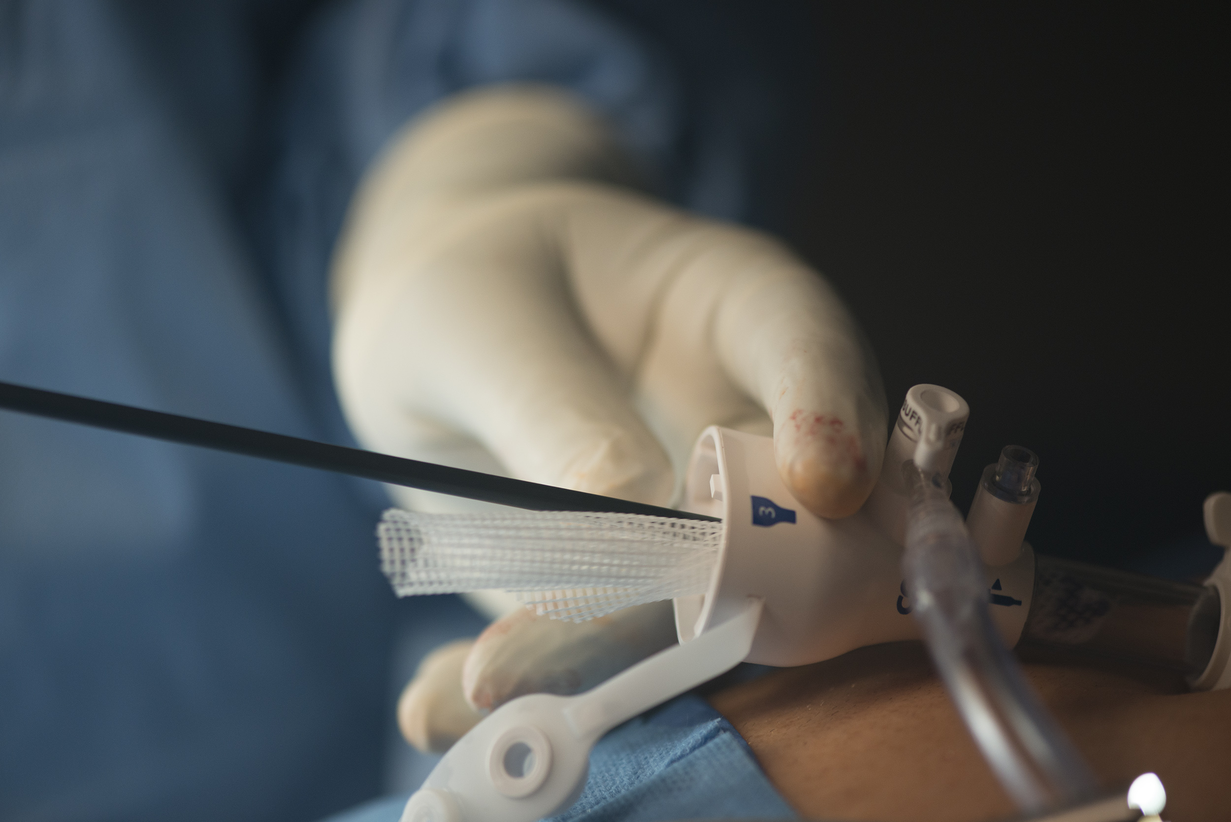 Inguinal Hernia Mesh being placed into tracer