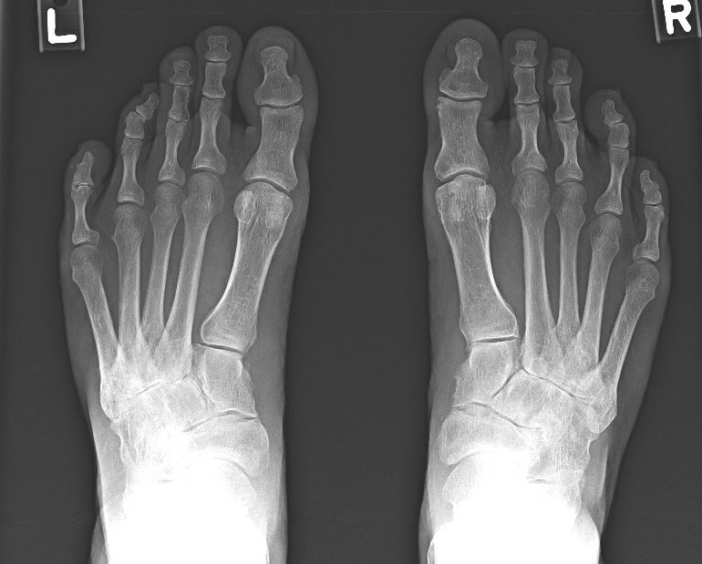 X-rays of osteoarthritic feet