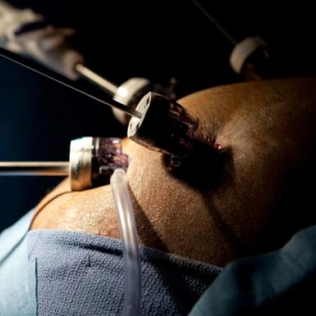 Laparoscopic ports during weight-loss surgery