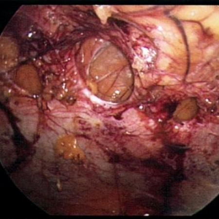Fascial defects in abdominal wall causing hernias